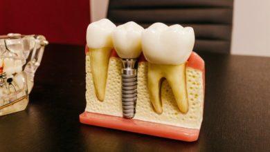 Photo of Polen tilbyder billige tandbehandlinger fra dygtige faguddannede tandlæger